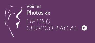bloc-photo-lifting