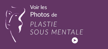 bloc-photo_platie_sous_mentale
