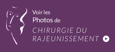 photo rajeunissement